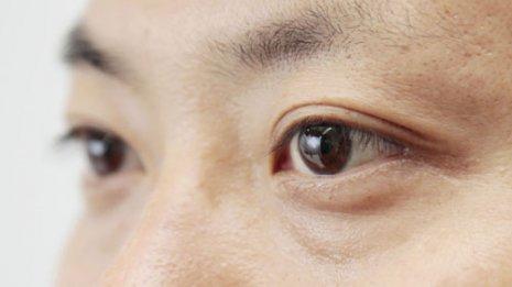 """白内障手術で重要…黒目の""""ポンプ細胞""""の数は足りているか"""