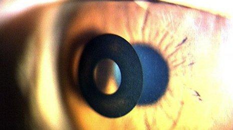 レーシック普及で注目 「老眼手術」のメリット・デメリット