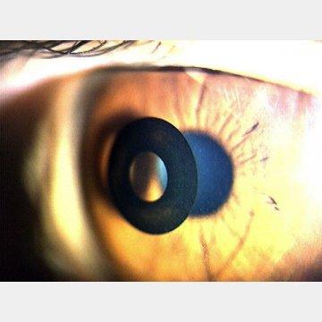 直径3.8ミリのリングを片目の角膜に挿入する手術も/(C)日刊ゲンダイ