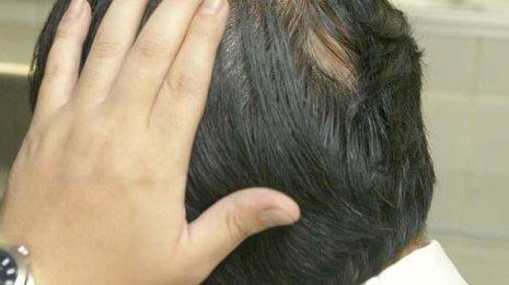 """「抜け毛対策」は頭皮ケアで 8月の紫外線ピークへ""""先手必勝"""""""