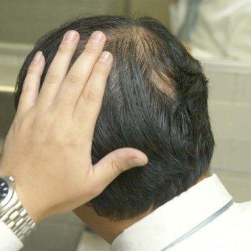 頭皮にも紫外線対策