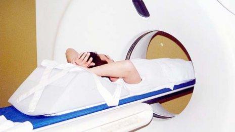 がん検診は必ずしも長生きにつながらない