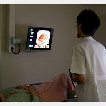 大腸内視鏡検査も最近は痛みがほとんどない