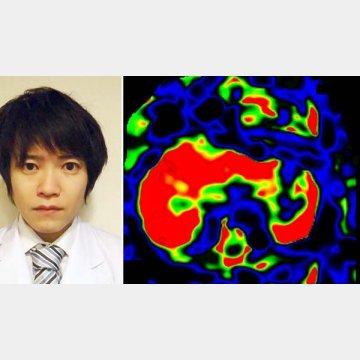 MRIで脂肪肝の状態が分かる(左=横浜市立大学医学部の今城健人医師)