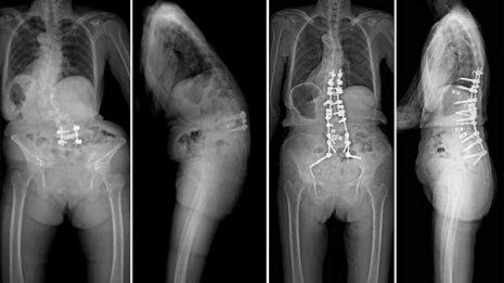 寿命が縮む高齢者の「腰曲がり」 日常予防と手術治療法