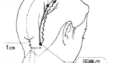 """緊張型や片頭痛とも違う """"第三の頭痛""""は低気圧で悪化する"""