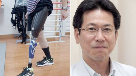 【義肢・装具外来】下肢切断の半数以上は血管障害で足を失った人