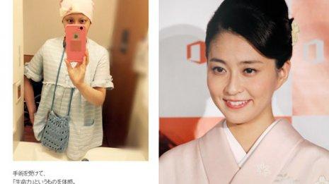 小林麻央はステージ4で手術 狙いは皮膚転移の症状緩和か