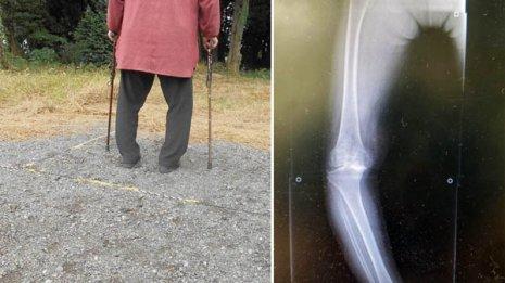 【変形性膝関節症】60歳なのに杖なしで歩けなくなった女性