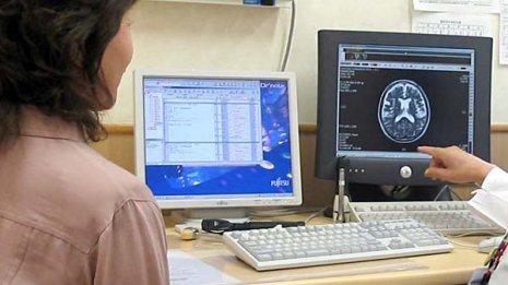 脳梗塞に対する血栓回収療法の効果