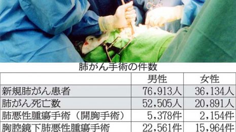 肺がん手術を受けられる患者は意外と少ない