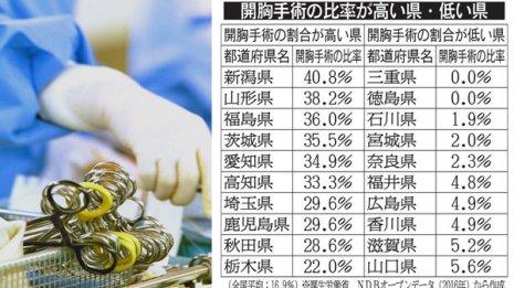 肺がん開胸手術は都道府県の格差が大きい
