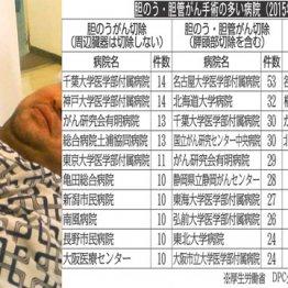 胆のうがん手術は千葉大と神戸大 胆管がん手術は名古屋大