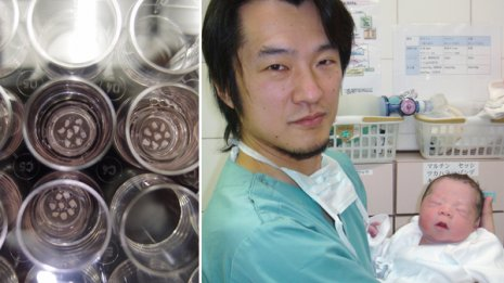 【早発閉経の不妊】卵巣に残る原始卵胞を活性化させる