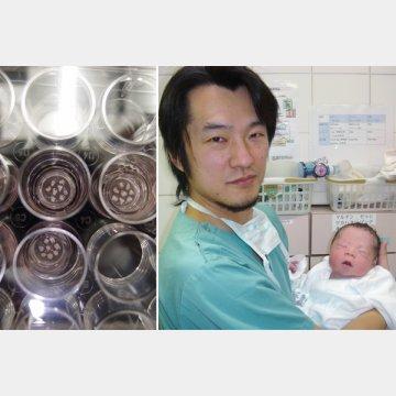 聖マリアンナ医科大学病院生殖医療センターの河村和弘センター長(左は採取した卵巣組織)