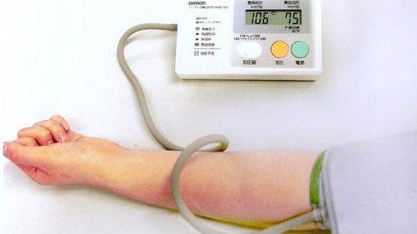 血圧の変動が大きいとアルツハイマー型認知症になりやすい