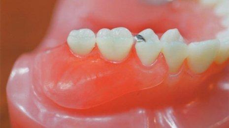義歯よりインプラントの方がより美味しく物が食べられる
