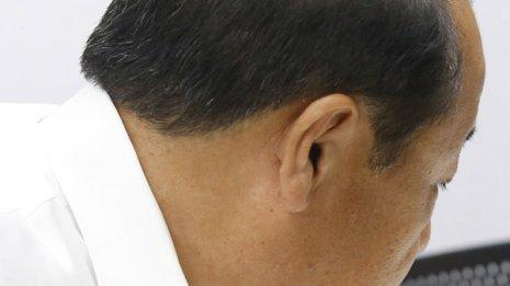 """いつもの4倍超! 皮膚科医が教える""""脱毛の秋""""の育毛対策"""