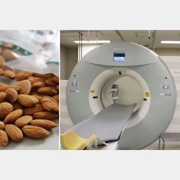 アーモンド、ナッツ、脳内PET検査などが紹介されているが…