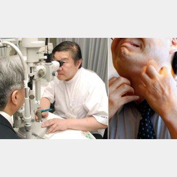 10代、20代での発症も(左は清澤眼科医院の清澤源弘院長)