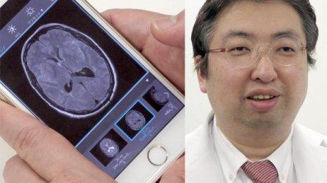 スマホを用いたICT医療の導入で医療費8%と入院日数15%の削減に成功