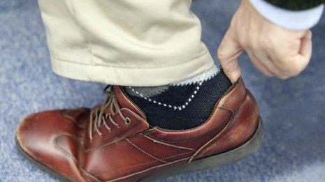 単なる擦過傷では済まない…靴擦れが引き起こす意外な病気