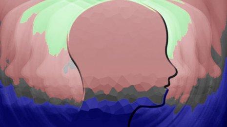 """聴神経腫瘍は""""良性""""脳腫瘍だが脳幹圧迫で命に関わることも"""