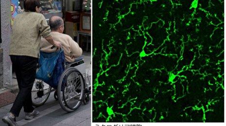 """アルツハイマー病の新たな""""共犯者""""ミクログリア細胞の正体"""