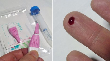 エイズ<2>HIV感染を確定するには最低2回の検査が必要