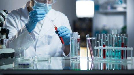 """""""的中率""""は90%超 がん血液検査の読み方と過剰診断リスク"""