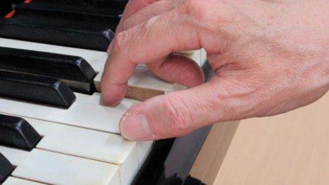 フォーカルジストニア障害の指