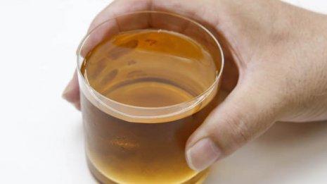 ミネラル豊富というが…「麦茶が熱中症に良い」は本当か?