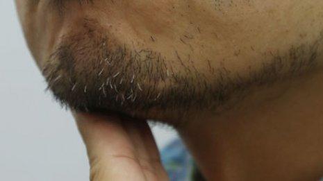 リスクが16分の1に低下「ひげ」が皮膚がんを予防する