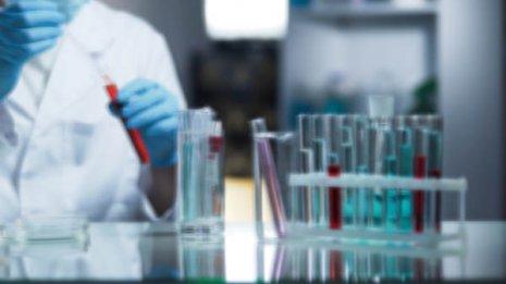 エイズ<6>HIV郵送検査を利用するなら 信頼できる5つの条件