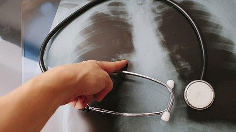 がん別にズバリ 職場検診と自治体検診の効果的組み合わせ