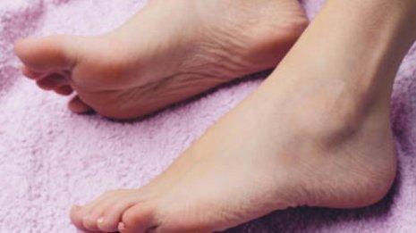 【足】足裏にタコやウオノメが…それは膝・腰痛のシグナル