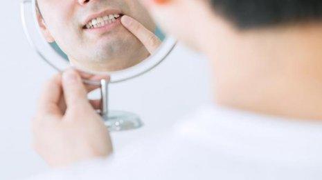 歯の根管治療 通院期間で処置の良し悪しは判断できないが…