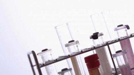 技術の進歩で薬の効果や副作用を予測できるようになった