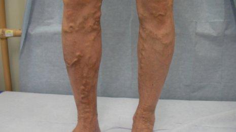 下肢静脈<上>職場セルフケアで足の「筋ポンプ」を鍛える