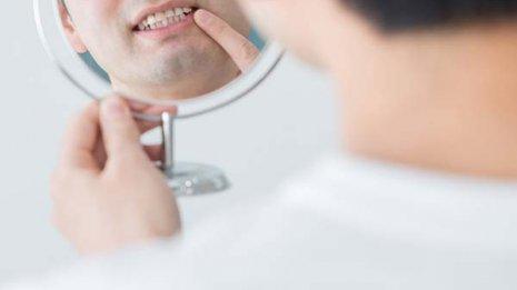 膵臓がんリスクが2倍近くも増える…「歯周病」の恐ろしさ