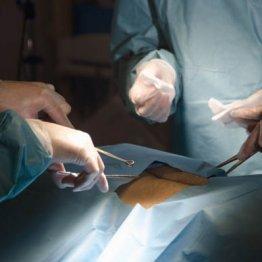 コロナ禍の影響は? 1カ月のがん手術延期で100人中1人が死亡