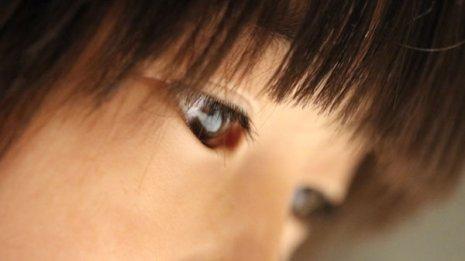 子供の眼の位置がずれていて…斜視は手術すべきでしょうか