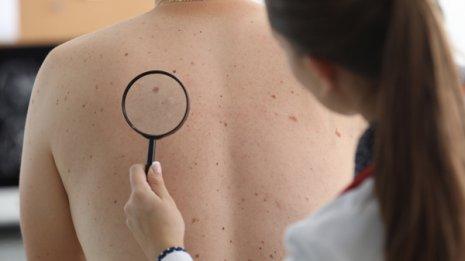 免疫療法が効かないがん患者に他人の便を移植してみると…