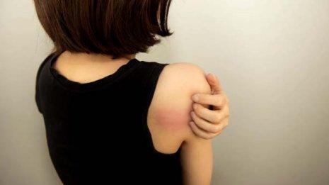 蕁麻疹の治療薬は緑内障の人には使えない場合がある