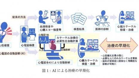 心臓病を検出するAIの開発 日本のメーカーは様子見の傾向