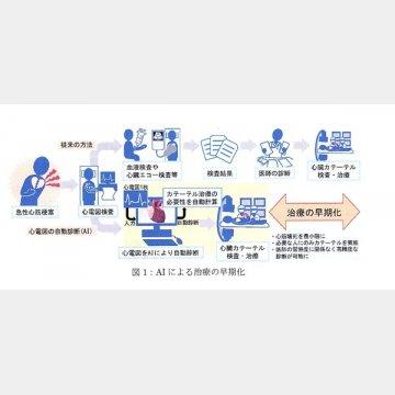 AIによる心電図の自動診断治療の流れ