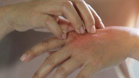 「蚊アレルギー」強い皮膚症状の原因はEBウイルスにあり