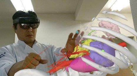 医療でのVR活用<上>目の前に患部周辺の3次元CGが浮かぶ