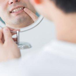 血糖コントロールが悪い糖尿病患者は歯周病発症率が2.6倍高い