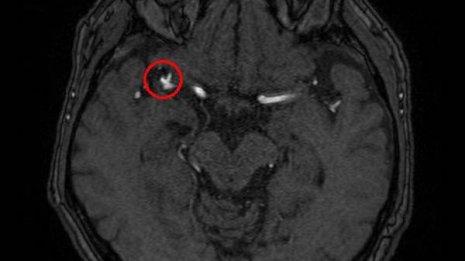 「脳動脈瘤」をスクリーニングするAI画像診断支援ソフトの威力